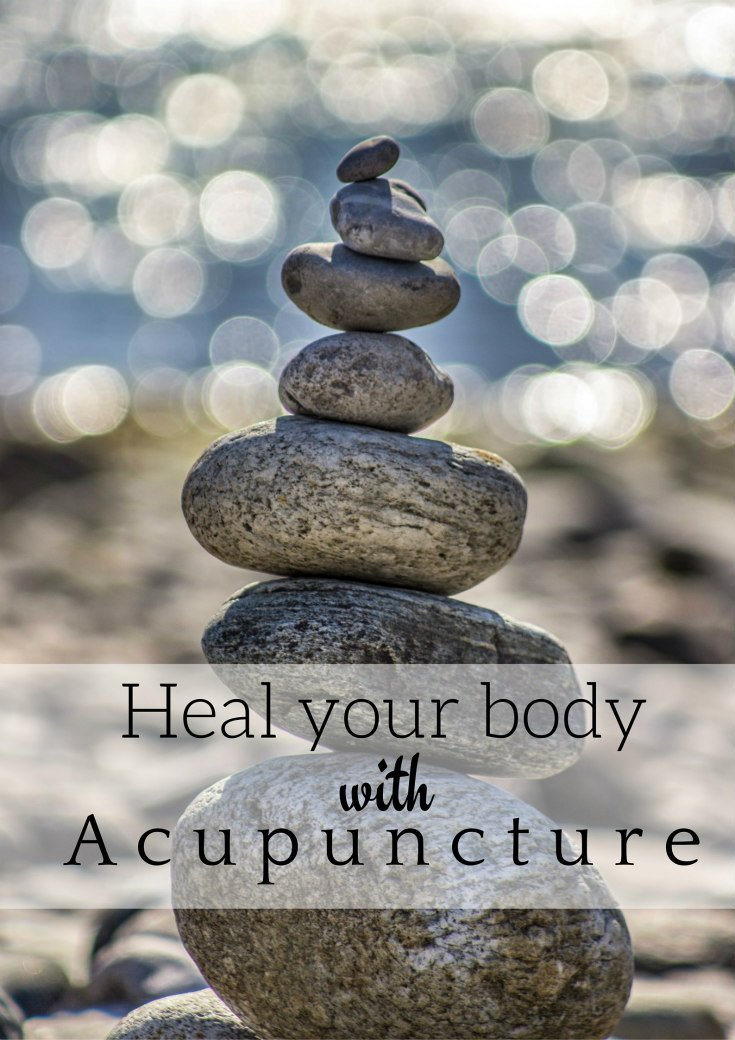 Heal your body with Acupuncture