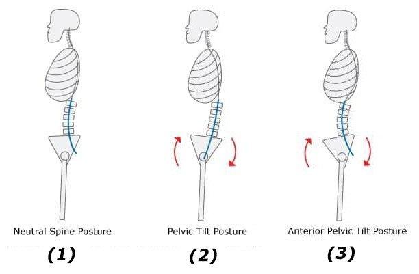 tight hamstring - posterior anterior tilt